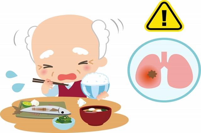 誤嚥性肺炎について
