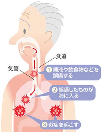 誤嚥性肺炎病理図